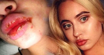 Губы девушки деформировались после филлеров, введенных мошенницей