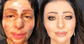 Визажист с помощью макияжа совершает удивительные преображения девушек с дефектами на коже