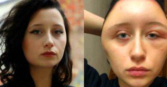 Девушка опухла и чуть не умерла из-за краски для волос