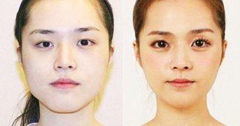 Удивительные изменения после пластических операций. Фото до и после